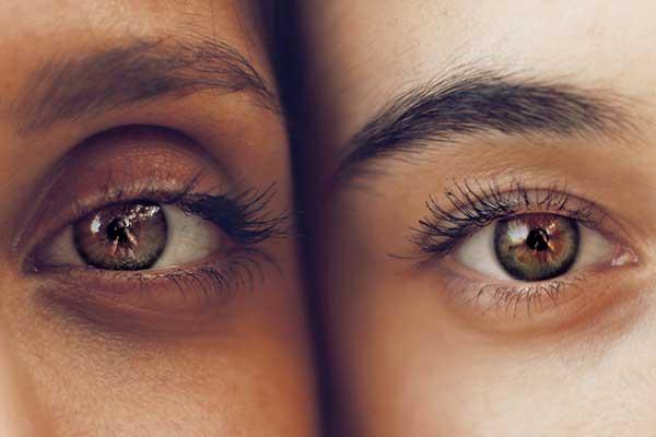 علت تغییر رنگ چشم