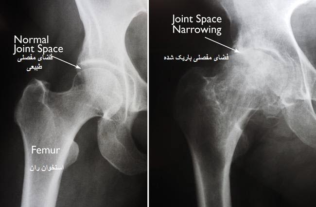 تفاوت مفصل ران سالم و ملتهب