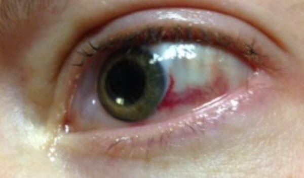 جدا شدگی شبکیه (Retinal detachment)