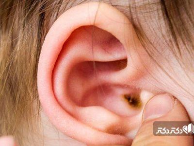 جرم گوش چیست