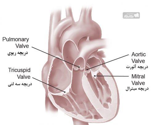 انواع بیماری های دریچه های قلب