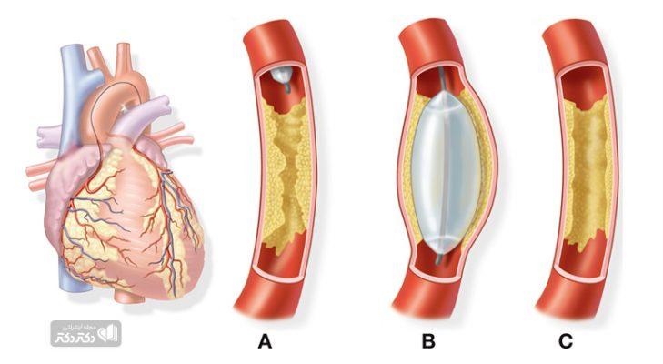 ضرورت انجام جراحی بای پس قلب