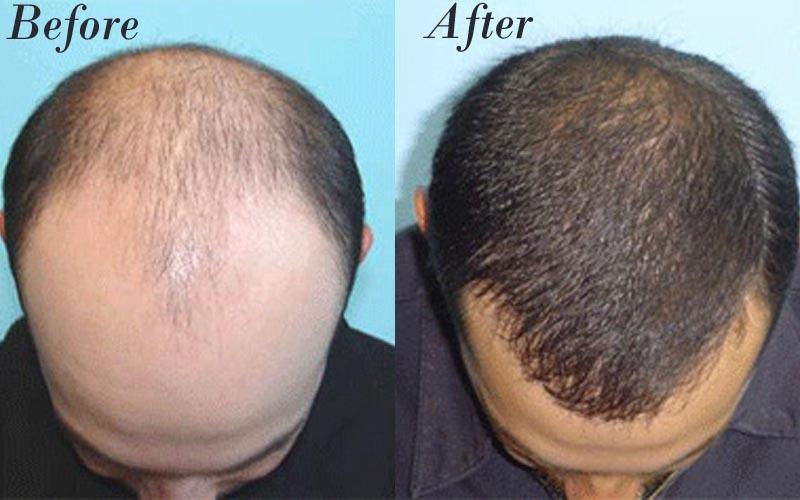 مهم ترین نکاتی که قبل از کاشت مو باید در نظر بگیرید