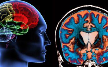شایعترین بیماریهای مغز و اعصاب