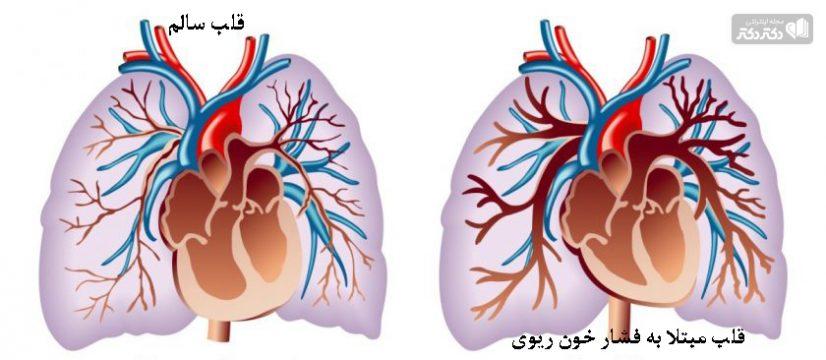 علائم فشار خون ریوی
