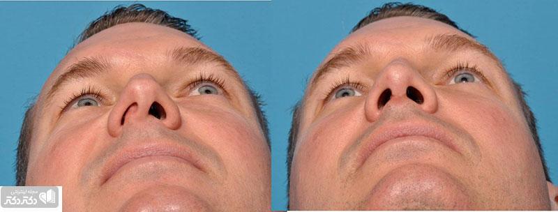 یک فرد مبتلا به انحراف تیغه بینی قبل و بعد از جراحی اصلاح
