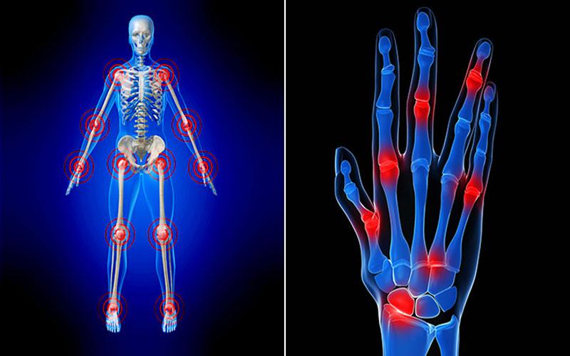 التهاب مفاصل، اصلی ترین نشانه روماتیسم