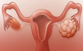 علت سندرم تخمدان پلی کیستیک
