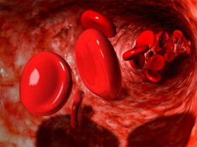 علل کاهش پلاکت در خون