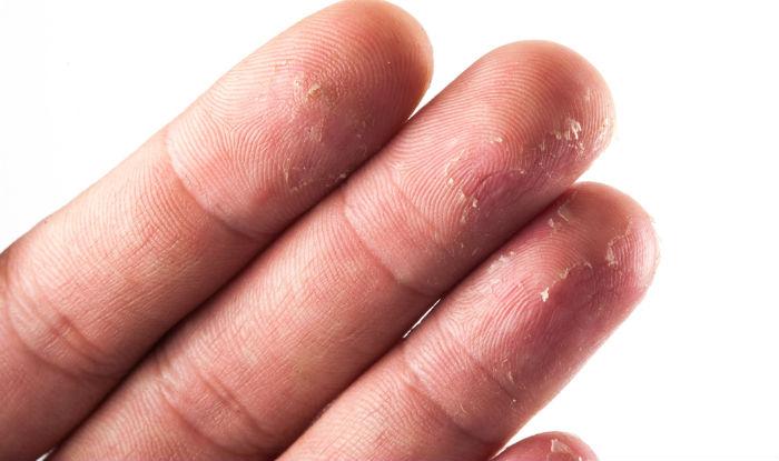 پوست پوست شدن دست مشکل رایجی که راهکارهای آسان دارد