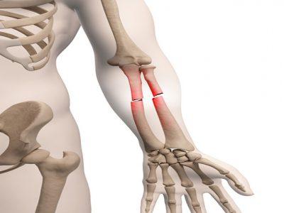 شکستگی-استخوان