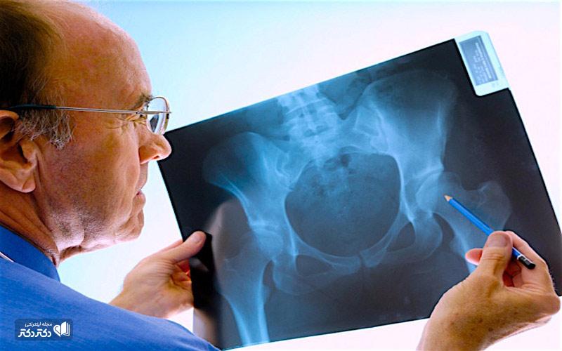 تشخیص-شکستگی-استخوان