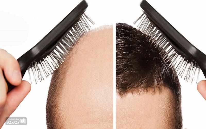 ریزش مو و کاشت مو
