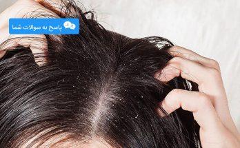 برطرف کردن موهای چرب سر