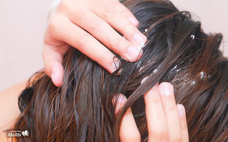 موهای چرب و روغن نارگیل