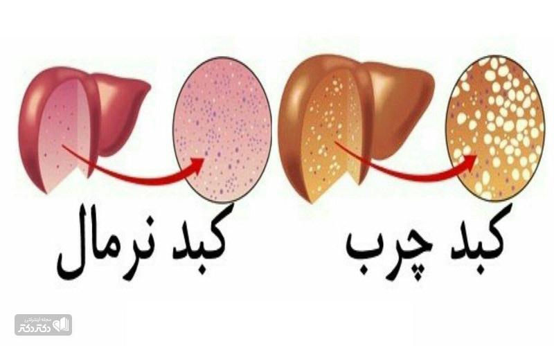 انواع بیماری کبد چرب