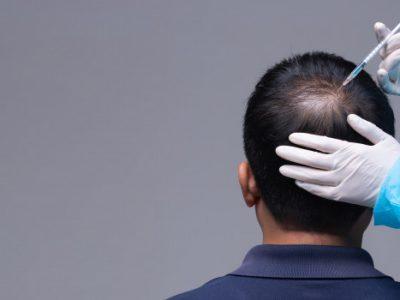 مزوتراپی برای ریزش مو