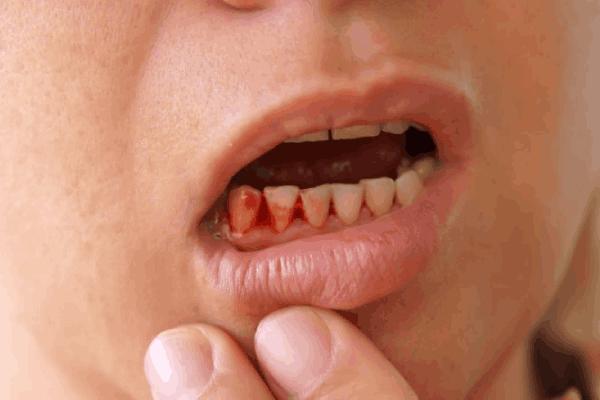 پایین بودن پلاکت خون