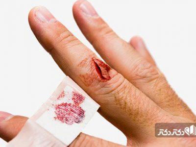 پلاکت بالای خون