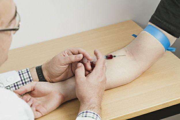 تشخیص بیماری لوپوس چگونه انجام میشود؟