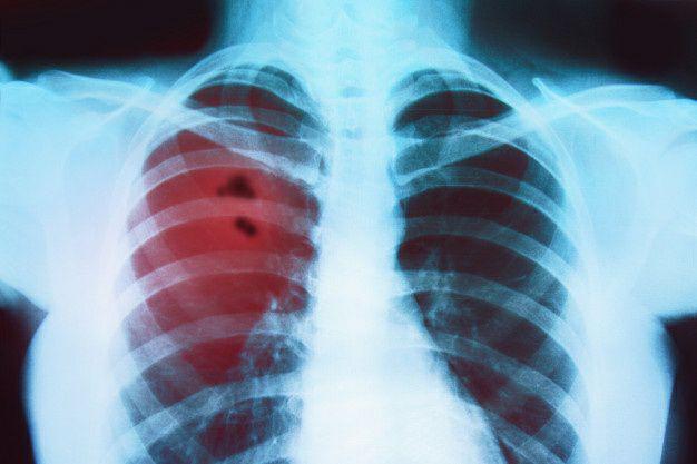 سرطان ریه چیست و چه علایمی دارد؟