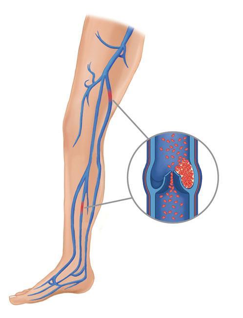 لختههای خونی ممکن است در یکی از سیاهرگهای عمقی بدن در قسمت ران، زانو یا لگن تشکیل شوند.