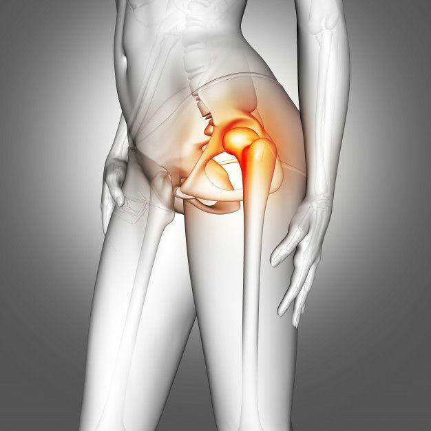عوارض و مشکلات احتمالی بعد از جراحی تعویض مفصل ران