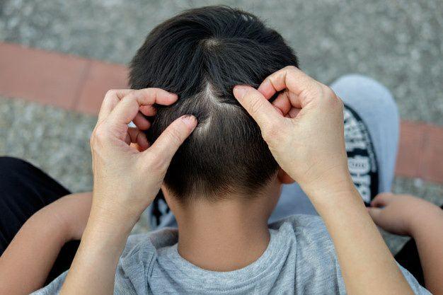 معرفی درمانهای خانگی برای درمان شپش موی سر