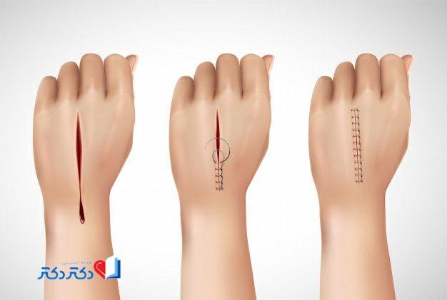 درمان زخم باز
