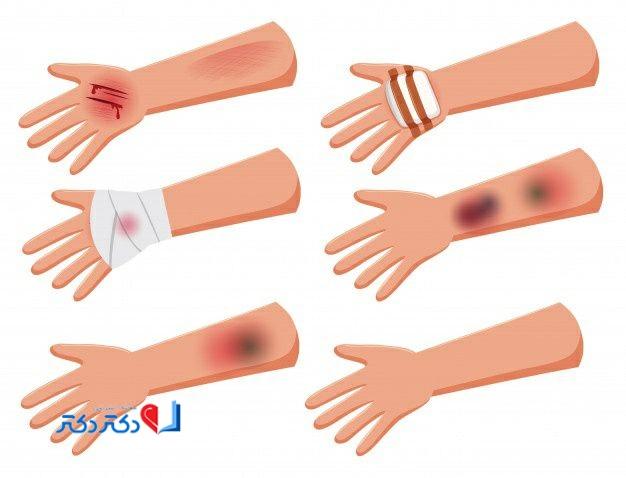 درمان زخم عمیق با طب سنتی