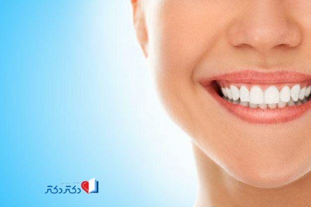 فلورید برای دندان