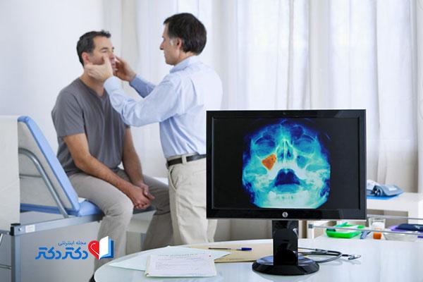 تشخیص سینوزیت توسط پزشک
