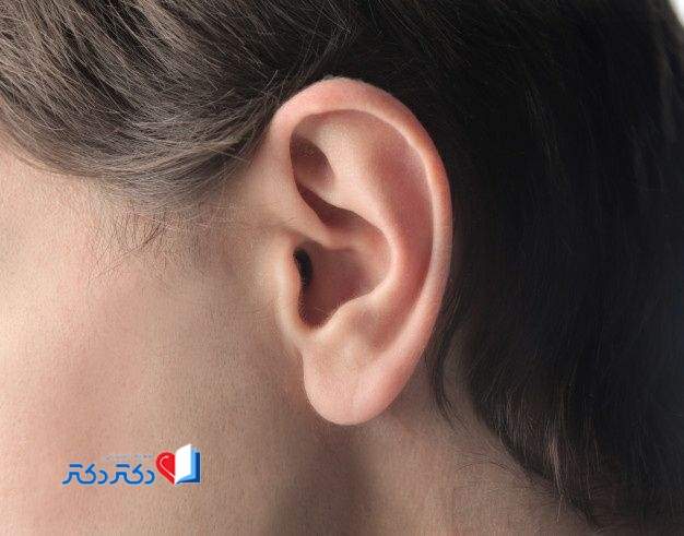 درد پشت گوش، یک سر درد متفاوت