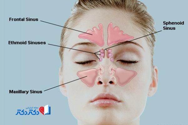 سینوزیت یا عفونت سینوس