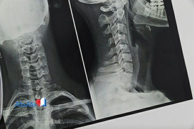 دیسک گردن رادیولوژی