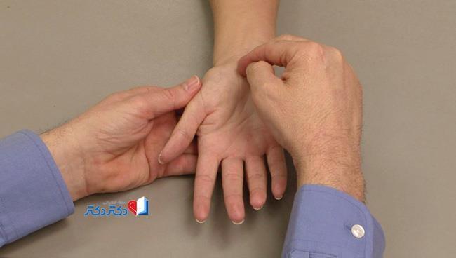 آزمایش بیماری سندروم تونل کارپال
