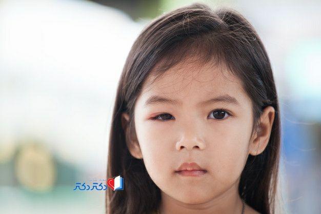 نشانههای حساسیت چشم