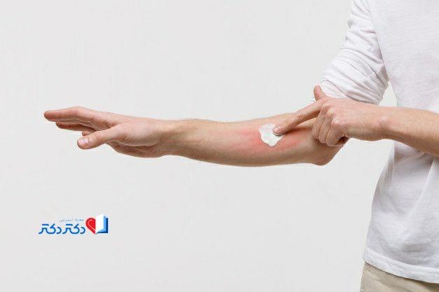 درمان پشه گزیدگی
