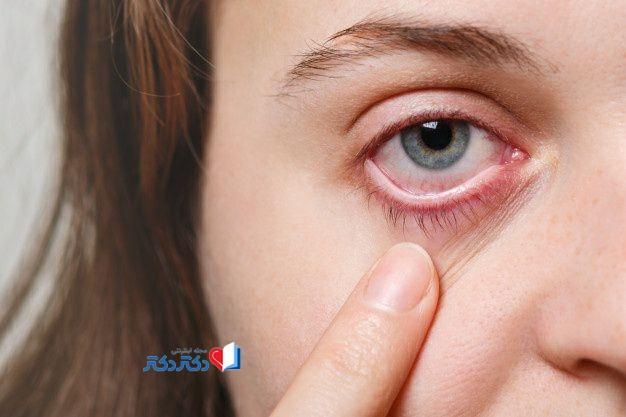 انواع آلرژی چشم