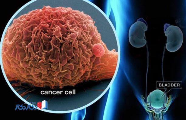 پیشرفت سرطان مثانه