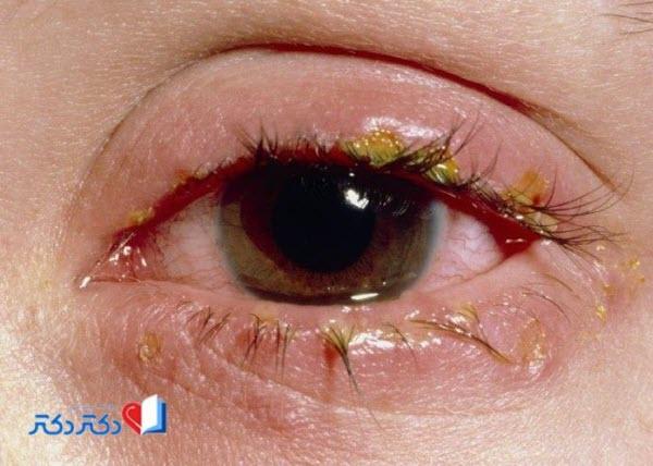 بلفاریت چشم
