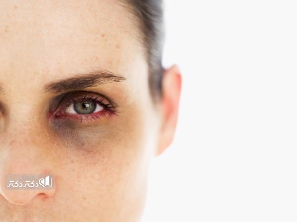 درمان گودی و سیاهی زیر چشم
