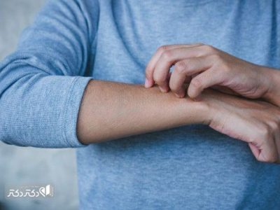 طول درمان بیماری گال