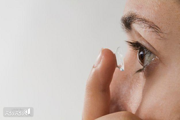 تشخیص علت خارش چشم