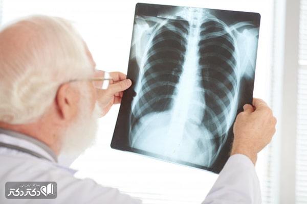 افراد در معرض سرطان ریه