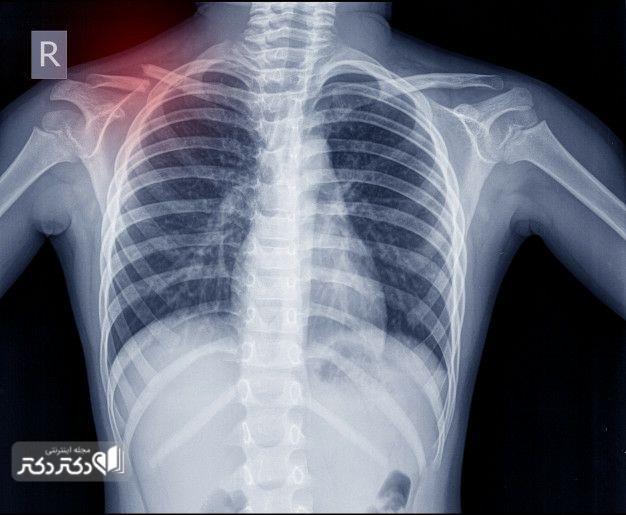تشخیص علت درد دنده