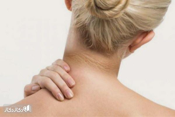 علت سیاهی پشت گردن و راههای درمان آن