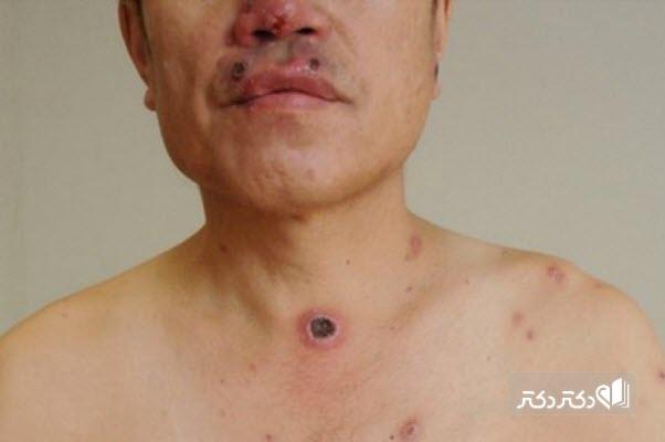زخم بیماری سیفلیس