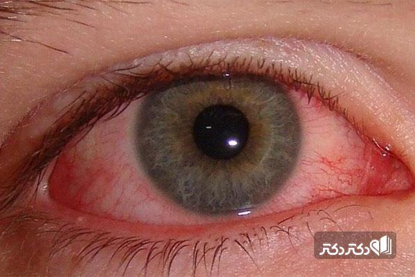 درمان تاری دید در دیابت
