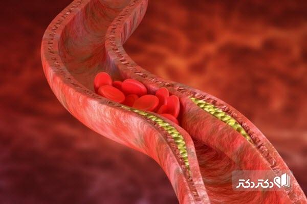 معرفی خون و سلولهای موجود در آن